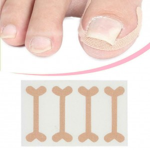 A set of patches for the correction of ingrown nails, 4pcs, Elastic, breathable, Recovery, Correction, Fixator